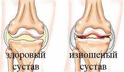 Лечение суставов пермь бад биоритм суставы
